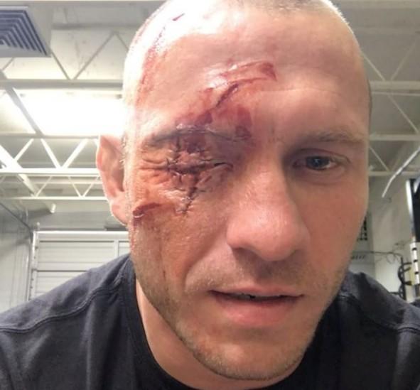 Kết quả hình ảnh cho donald cerrone injury