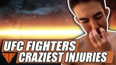 Video: UFC Fighters Craziest Injuries | Volume 1