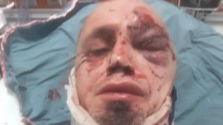 Former WWE Personality Jason Sensation Shares Gruesome Photos Of Himself After Being Hit By A Car