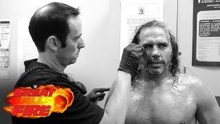 Post Great Balls Of Fire Fight-Size Update: Matt Hardy Gets Stitches, Fallout And Raw Talk Videos, WWE 24 Vignette, More