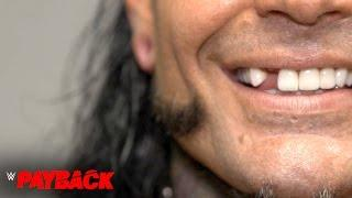 Jeff Hardy Is Broken ... At Least His Tooth Is
